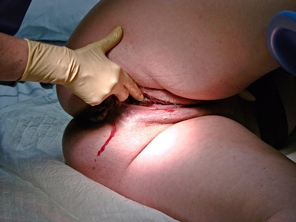 Dilatació